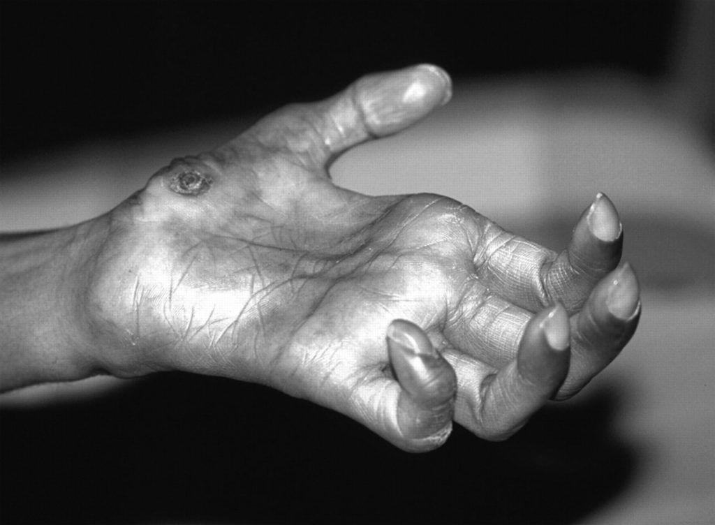 Lepra, een chronische ziekte