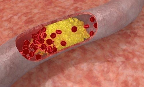 Eenvoudig je cholesterol verlagen